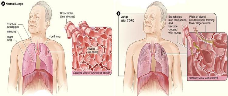 Chronic Obstructive Pulmonary Disease (COPD)