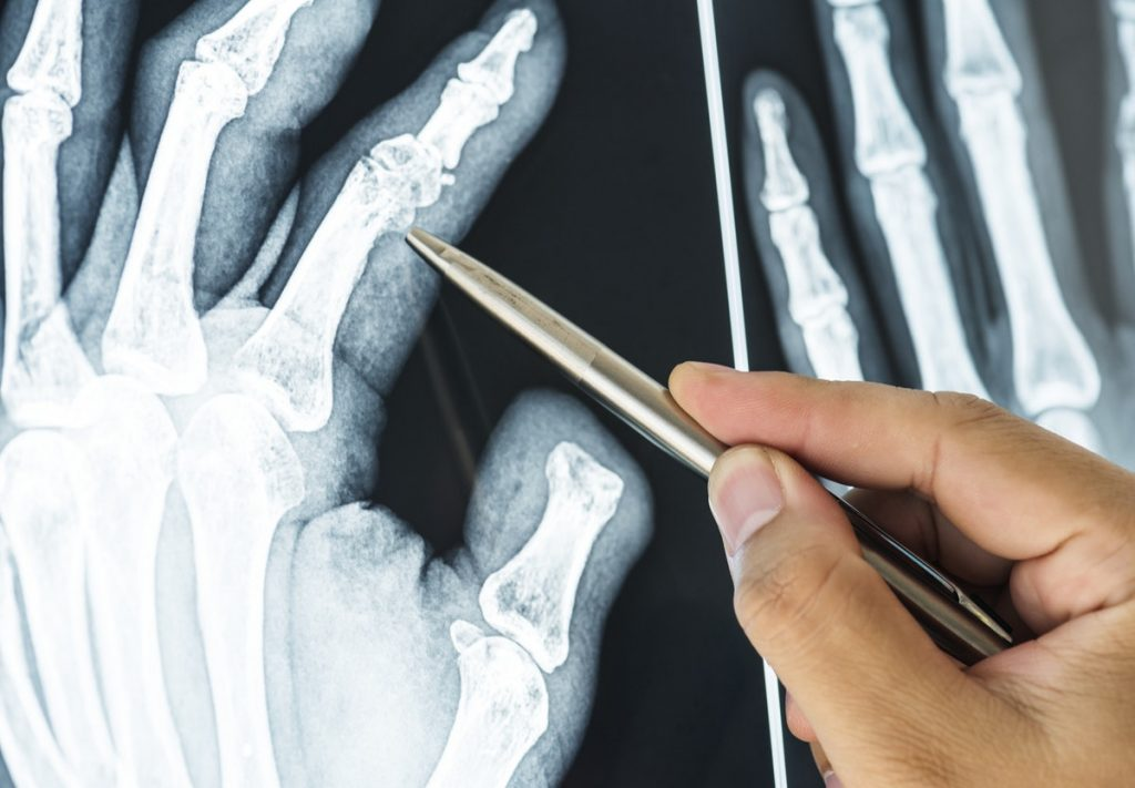 x-ray of finger joints - conditions CBD target
