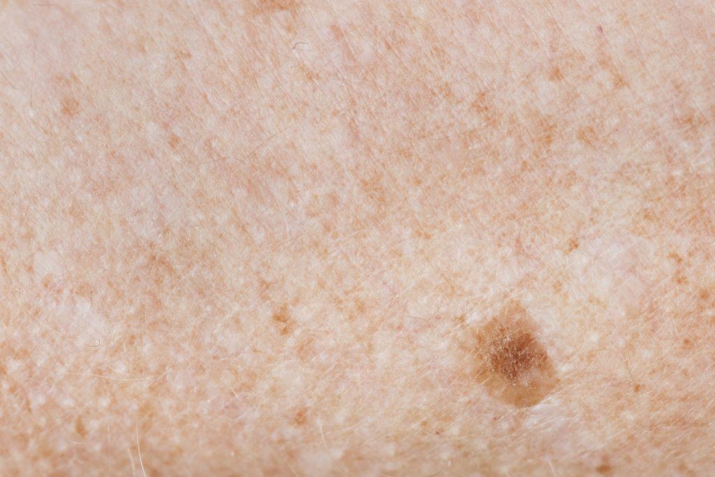 freckled skin / skin cancer